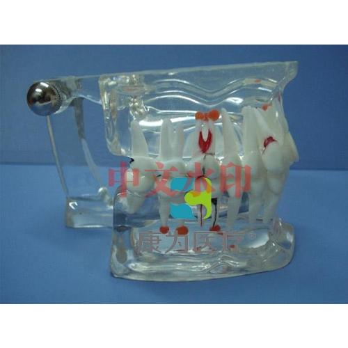 """""""康为医疗""""综合病理水晶牙列模型(28颗牙)"""