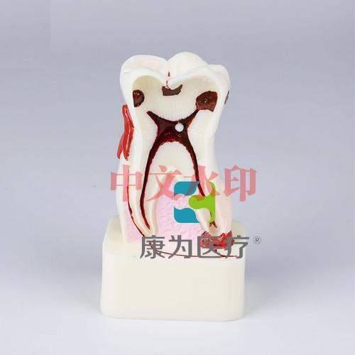 """""""康为医疗""""四倍牙齿综合病模型"""