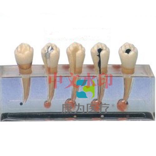 """""""康为医疗""""牙髓病临床模型"""