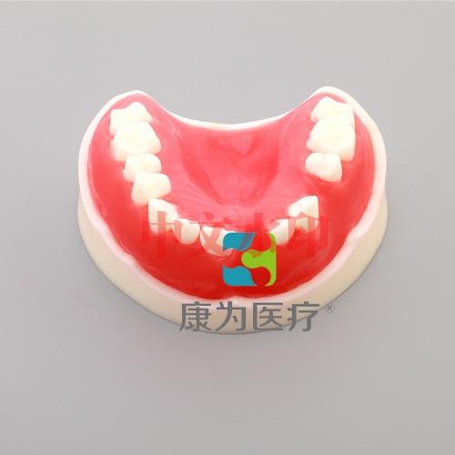 """""""康为医疗""""牙周练习模型"""