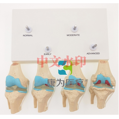 """""""康为医疗""""4阶段膝关节模型"""