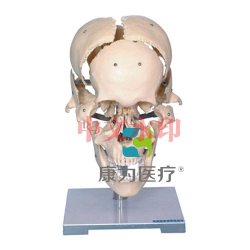 """""""康为医疗""""颅骨骨性分离模型"""