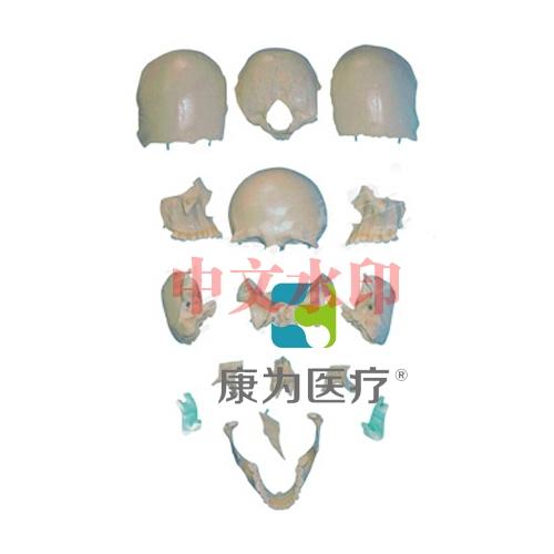 """""""亚博体育网页版登陆医疗""""部分颅骨散骨亚博体育官方版"""