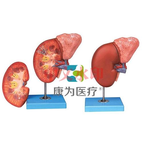 """""""康为医疗""""肾脏与肾上腺放大模型"""