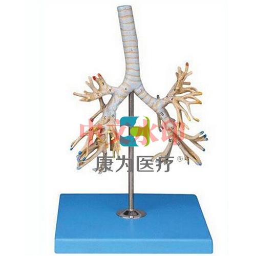 """""""康为医疗""""支气管树模型"""