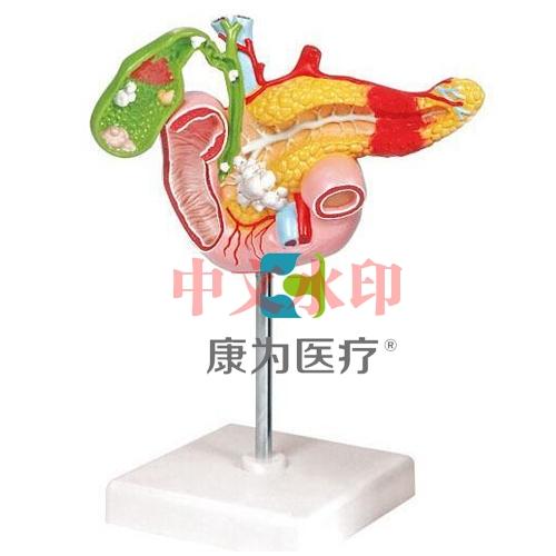 """""""康为医疗""""病理模型胰腺模型,十二指肠和胆囊模型"""
