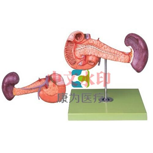 """""""康为医疗""""胰、十二指肠和脾模型"""