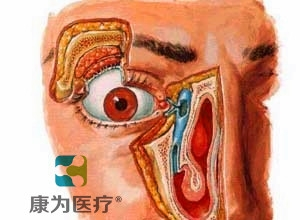 """""""康为医疗""""高级鼻泪管通液训练模型"""
