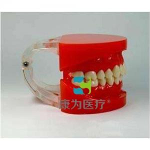 """""""康为医疗""""标准牙颌模型A"""