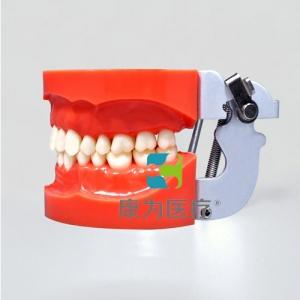 """""""康为医疗""""标准模型(32颗螺钉固定牙齿)"""