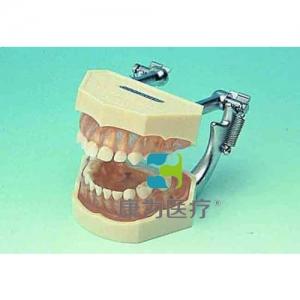 """yzc亚洲城 唯一 官网医疗""可拆乳牙颌模型"