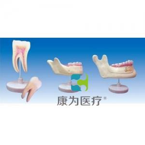 """""""yzc亚洲城 唯一 官网医疗""""磨牙、乳牙、横牙解剖(自然大)"""
