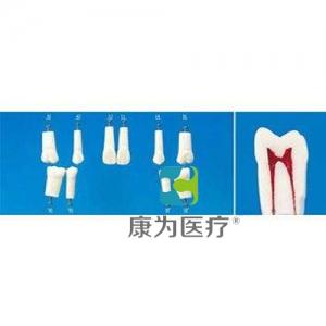 """""""康为医疗""""带髓腔的复合树脂牙"""