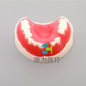 """yzc亚洲城 唯一 官网医疗""牙周练习模型"