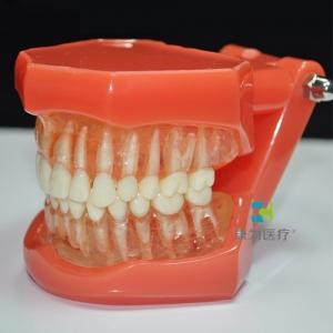"""""""康为医疗""""软牙龈可拔牙模型"""