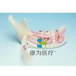 """""""康为医疗""""下颌骨组织模型"""