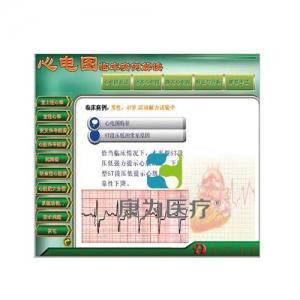 """yzc亚洲城 唯一 官网医疗""新版心电图教学软件---【心电图临床实例解读】"
