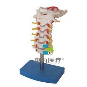 """""""亚博体育网页版登陆医疗""""颈椎带颈动脉、后枕骨、椎间盘与神经亚博体育官方版"""