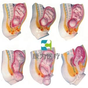 """""""康为医疗""""足月胎儿分娩过程模型"""