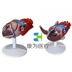 """""""康为医疗""""心脏解剖附病态动脉血管模型"""