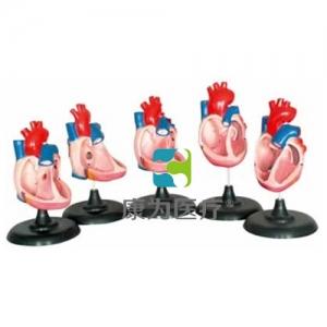 """""""康为医疗""""先天性心脏畸形模型"""