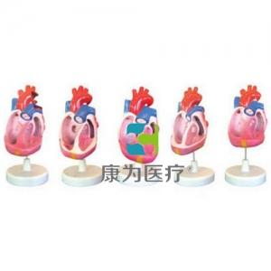 """""""康为医疗""""先天性心脏畸形模型(5部件)"""