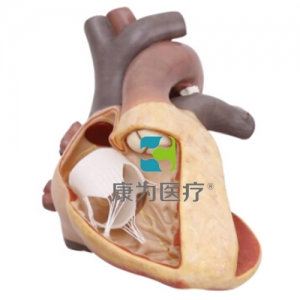 """""""康为医疗""""完全性大动脉错位模型"""