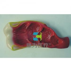"""""""康为医疗""""直肠内腔模型"""