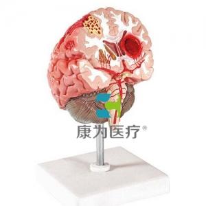"""""""康为医疗""""脑中风模型"""