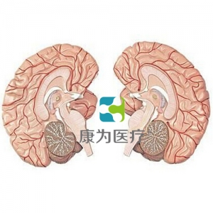 """""""康为医疗""""左右脑带脑动脉分布模型 2部件"""